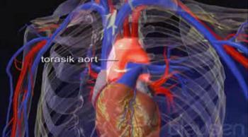 Aort kapağı yetmezliği belirtileri