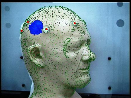 beyin-tumoru-nedenleri