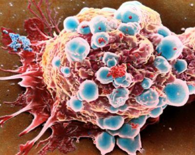 Kanser hastalığını tetikleyen faktörler