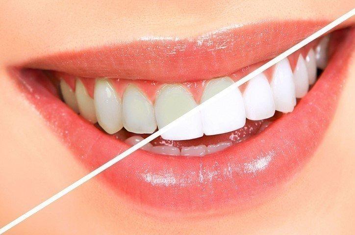 Lazerle Diş Ağartma Nasıl Yapılır?
