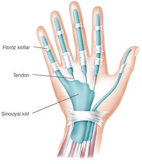 Romatizmal artrit